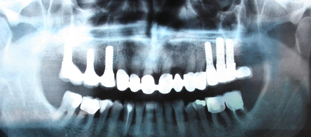 Füllungen, Zahnersatz, Implantate & Co.
