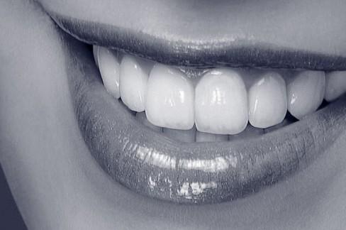 Zahnfleischbehandlung: gesundes Zahnfleisch – bester Halt